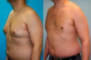 Рис. 3 Гинекомастия. Удаление увеличенных грудных желез лазерным способом полностью излечивает заболевание