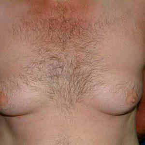 Рис. 1 Гинекомастия у мужчин - это рост грудных желез как за счет их гипертрофии, так и за счет избыточного отложения жировой ткани