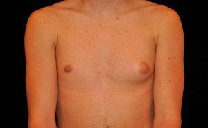 Рис. 2 Гинекомастия мужчин встречается односторонняя, двусторонняя и требует хирургического лечения