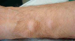 Рис.1 Жировики выглядят как шишки непосредственно под кожей