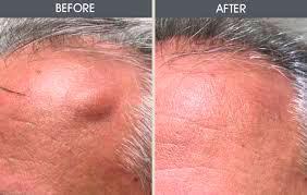 Рис.3 Лазерное лечение жировиков, расположенных под кожей не вызывает осложнений