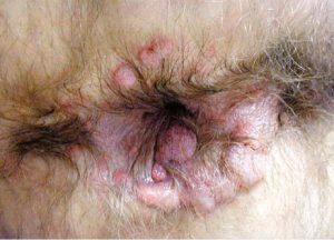 Рис. 4. Широкие кондиломы - признак вторичного сифилиса
