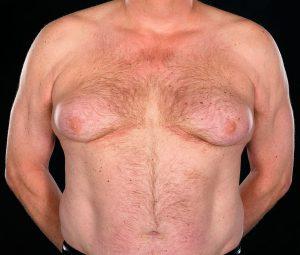Рис. 1 Гинекомастия - это разрастание железистой ткани грудной железы у мужчин