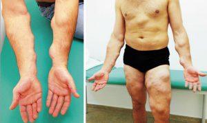 Рис. 1. Жировики и шишки по всему телу могут быть признаком наследственного липоматоза