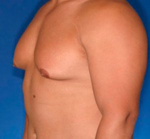 Рис. 1 Гинекомастия у мужчин выражается в увеличении размера груди и требует хирургического и гормонального лечения