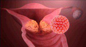 Рис. 3. Онкогенные штаммы вируса папилломы вызывают рак матки