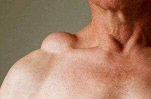 Рис. 1. Липома - доброкачественная жировая опухоль