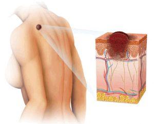 Рис. 1. Атерома появляется в результате закупорки протока сальной железы