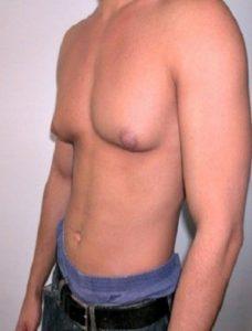 Рис. 2. Женская грудь у мужчин часто бывает с обеих сторон