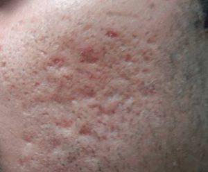 Рис. 2. Убрать рубцы на лице после акне можно лазером