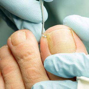 Рис. 1. Лечение вросшего ногтя у хирурга