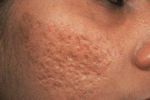 Рис. 1. Атрофические рубцы после акне на лице