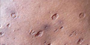Рис. 2. Атрофические рубцы характеризуются западением кожи