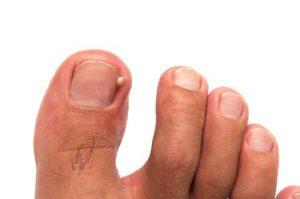Рис. 1. Симптомы вросшего ногтя