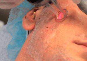 Рис. 1. Лазерная шлифовка шрамов после акне