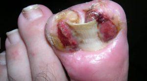 Рис. 1. Дикое мясо при вросшем ногте