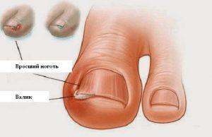 Рис. 2. Лечение дикого мяса при вросшем ногте