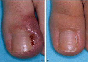Рис. 2. Лечение вросшего ногтя лазером. Фото до и после лечения