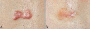 Рис. 1. Лечение послеоперационного рубца СО2-лазером