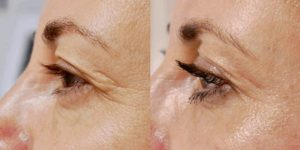 Рис. 2. Фото до и после безоперационной плазменной блефаропластики