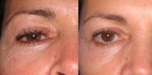 Рис. 3. Фото до и после безоперационной плазменной блефаропластики