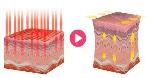 Рис. 3. Реакция стенки влагалища на СО2-лазер