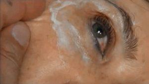 Рис. 2. Анестезия при безоперационной плазменной блефаропластике