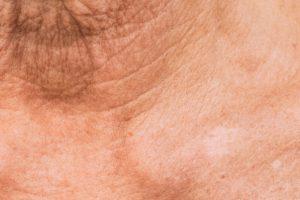 Рис. 4. Устранение дряблости и отвислости кожи плазмой