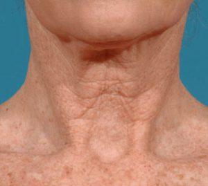 Рис. 2. Вид шеи до лечения
