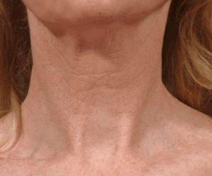 Рис. 3. Вид шеи после лечения морщин фракционным СО2-лазером