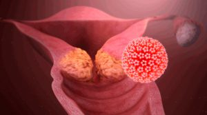 Рис. 4. Кондиломы могут перерождаться в рак
