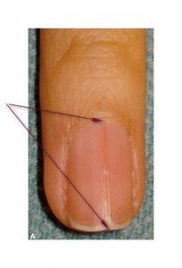 Рис. 1. Красная полоса на ногтевой пластине
