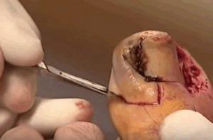 Рис. 3. Операция Ванденбоса при вросшем ногте.