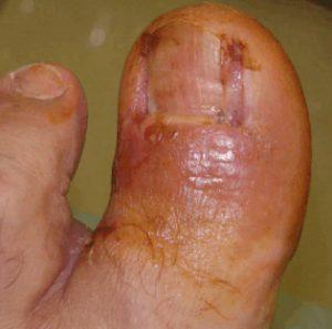 Рис. 2. Фото после двухсторонней краевой резкции вросшего ногтя лазером по поводу вросшего ногтя