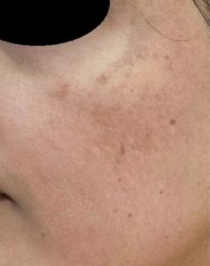 Рис. 4 А. Мелазма на лице - фото до лечения
