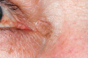 Рис. 3д. Актинический кератоз у угла глаза