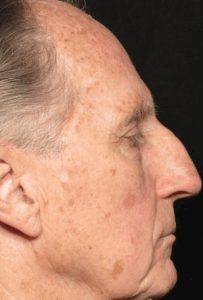 Рис. 4а. Фото до лечения актинического кератоза на лице лазером