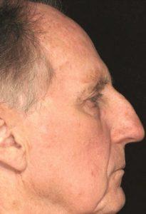 Рис. 4б. Фото после лечения актинического кератоза на лице лазером