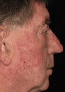 Рис. 5а. Фото до лечения актинического кератоза на лице лазером