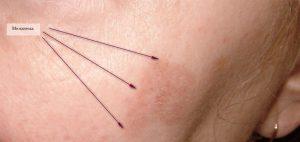 Рис. 2. Мелазма на лице (клиническое наблюдение)