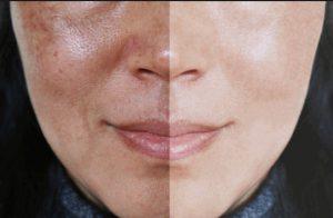Рис. 3. Фрационный лазер - лучший метод лечения мелазмы на лице