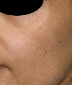 Рис. 4 Б. Фото после лечения мелазмы на лице фракционным лазером