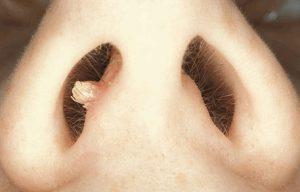 Рис. 3. папилломы могут встречаться в носу