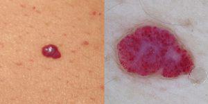 Рис. 4. Ангиома при микроскопии состоит из сосудов