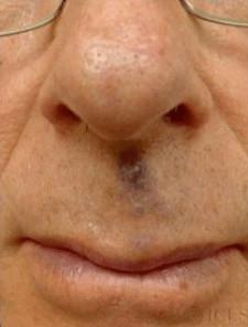 Рис. 4. Венозное озеро на лице