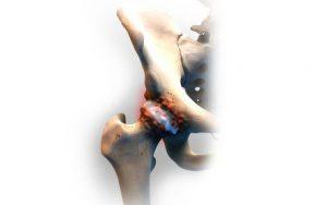 Рис. 1. Остеоартроз тазобедренного сустава.