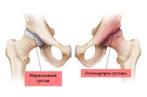 Рис. 2. При артрозе разрушается структура сустава, уменьшается количество синвиальной жидкости