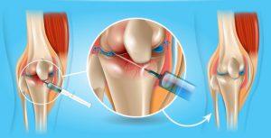 Рис. 3. Инъекции гиалуроновой кислоты проводятся в полость сустава, что устраняет боль и увеличивает подвижность сустава