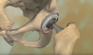 Рис. 2. При тяжелом артрозе тазобедренного сустава выполняют имплантацию (протезирование)